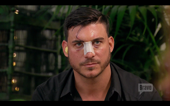 vanderpump rules jax surgery